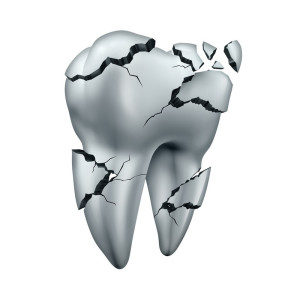 chipped-tooth-broken-tooth-boulder-300x298