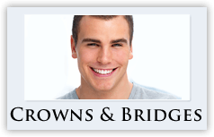 crowns-bridges
