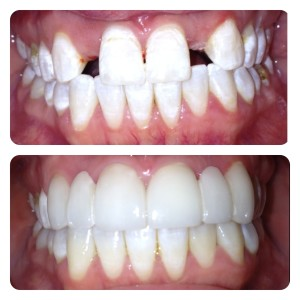 Cosmetic Dentistry Lewisville TX