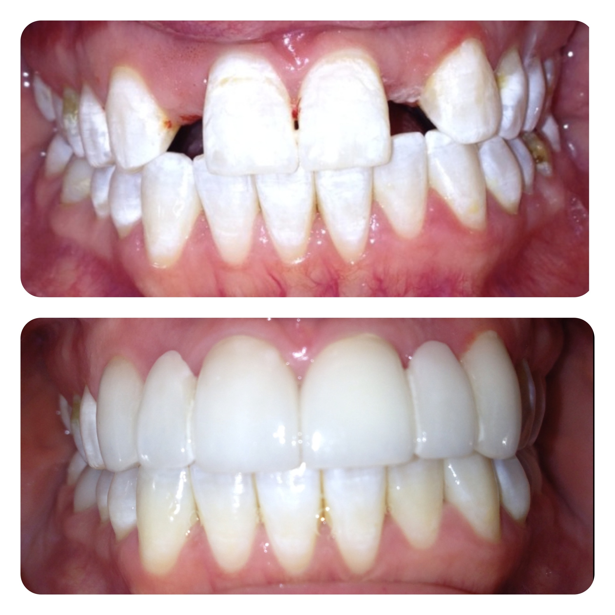 dental cosmetic technological advances Our team is proud to bring these technological advances to the longview community to  several cosmetic dental treatments to  call dentacare dental group in.