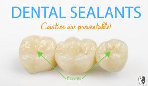 Dental Sealants can prevent cavities