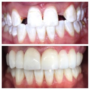 Cosmetic Dentistry by Dr. Ryan Daniel