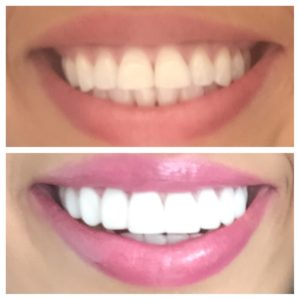 Porcelain Veneers Before & After Pictures