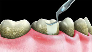 Gum Disease (Gingivitis) Treatment