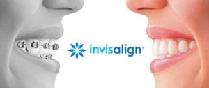 Best Invisalign Dentist Lewisville