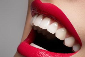 Cosmetic Dentistry for Smile Makeovers, Porcelain Veneers, Teeth Whitening, Invisalign, Composite Bonding. Axiom Dental, Cosmetic Dentist, Aurora, Denver