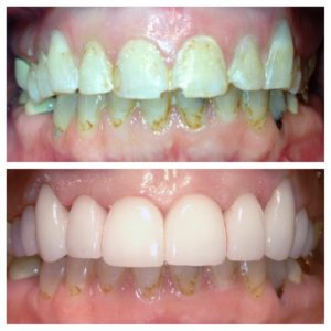 Smile makeover dental smile makeover d dental the colony dentist while a cosmetic dental does evaluate a patients smile during the very first visit to determine eligibility for treatment and improvement you solutioingenieria Gallery